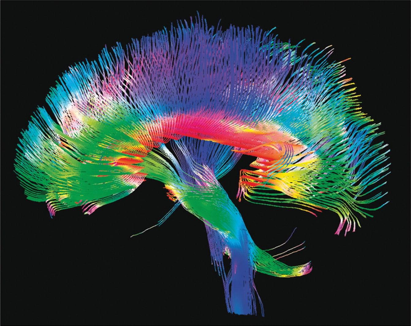 Relax More - Hoe stress je brein letterlijk doet krimpen